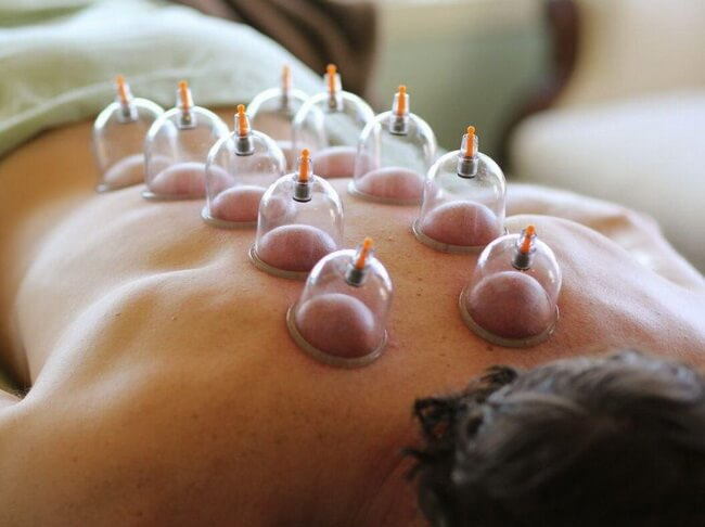 Cupping-Dry